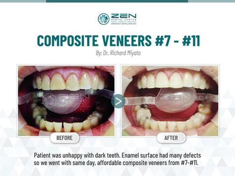 Composite Veneers  #7 - #11