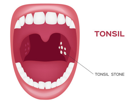 Are Tonsil Stones Giving You Bad Breath? Learn More with General & Family Dentist in Seattle, WA