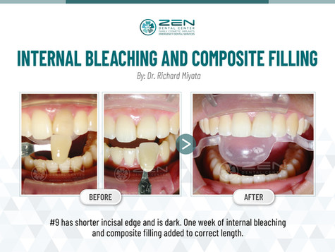 Internal Bleaching and Composite Filling #9