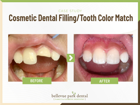 Bellevue Park Dental - Family Cosmetic Implants Invisalign Braces Dentist in Bellevue, WA 98008. Our Services: Crowns, Wisdom Teeth Extraction, IV Sedation, Kor Teeth Whitening, Tooth Bonding, Porcelain Veneers, Bridges, Fillings, Children's Dentistry, Teeth Extraction, Exams, Cleanings, Root Canal