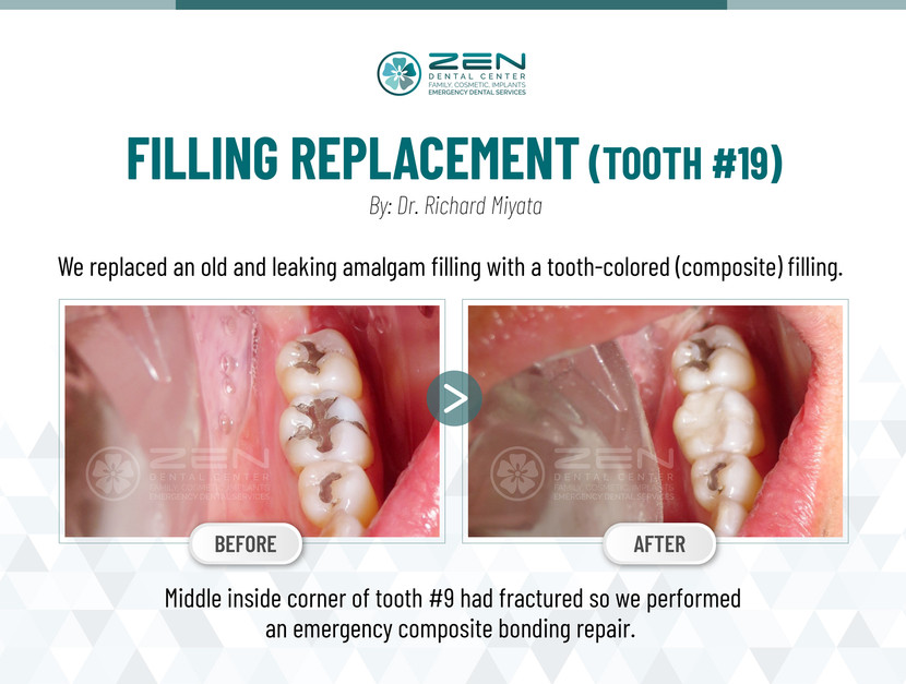 Filling Replacement (Tooth #19)
