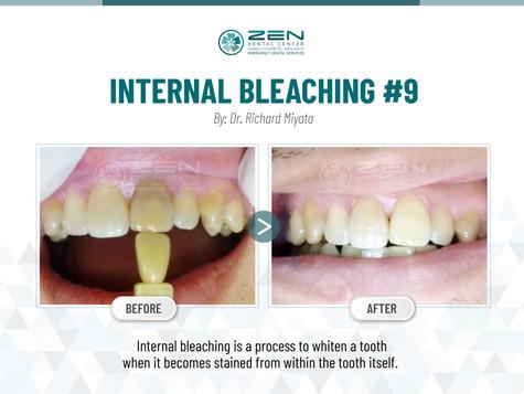 Internal Bleaching #9