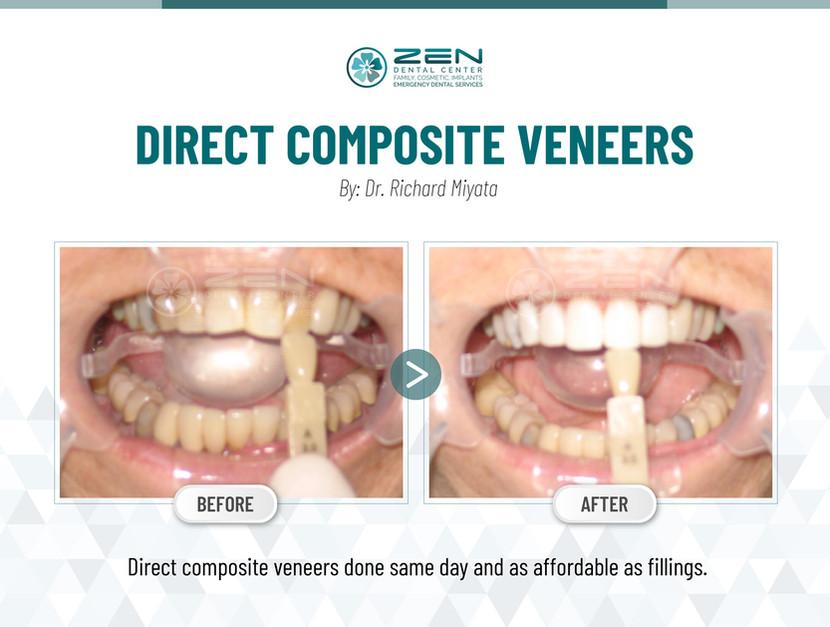 Direct Composite Veneers