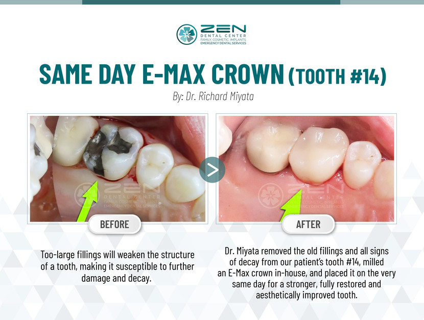 Same Day E-Max Crown (Tooth #14)