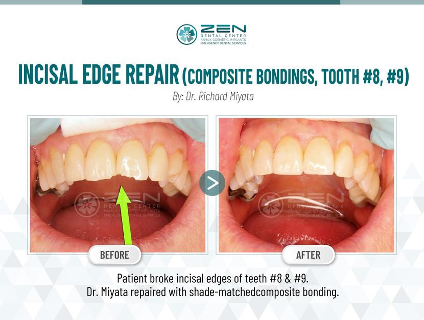 Incisal Edge Repair (Composite Bondings, Tooth #8, #9)