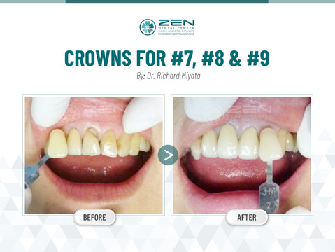 Crowns for #7, #8 & #9