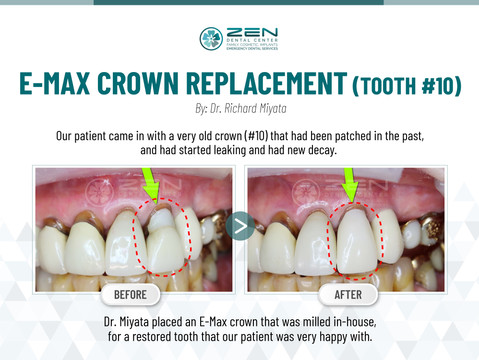 E-Max Crown Replacement (Tooth #10)