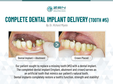 Complete Dental Implant Delivery (Tooth #5)