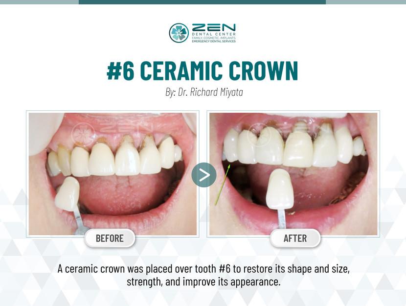 #6 Ceramic Crown