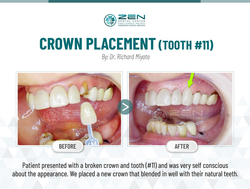 Crown Placement (Tooth #11)