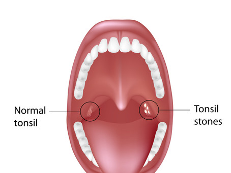 Do You Have Tonsil Stones? Causes, Symptoms & Treatments, With Beaverton,OR Family & General Dentist
