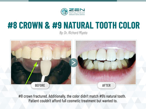 #8 crown & #9 natural tooth color