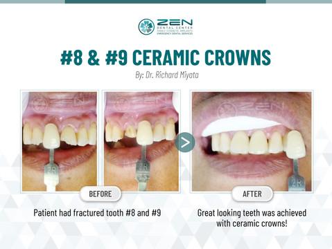 #8 & #9 Ceramic Crowns