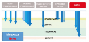 Лифтинг на кожата сХАЙФУ (HIFU)