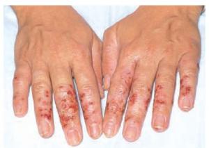 контактен дерматит