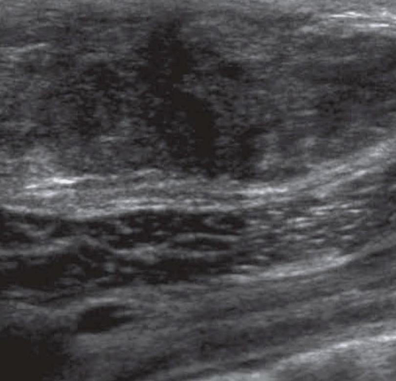 Ехография на млечни жлези