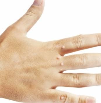 Премахване на кожни образувания