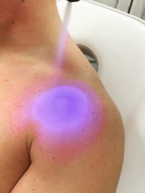 Cryo Treatment