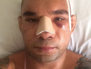 'Cyborg' Santos Before and After Surgery