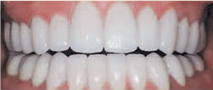 teeth after ceramic restoration