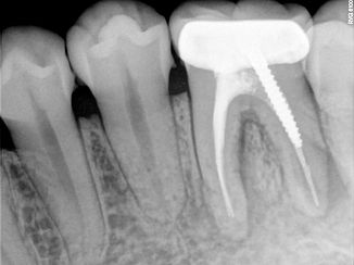 Intra-Oral X-Ray