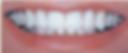 teeth after ceramic restoration