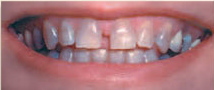 teeth before ceramic restoration