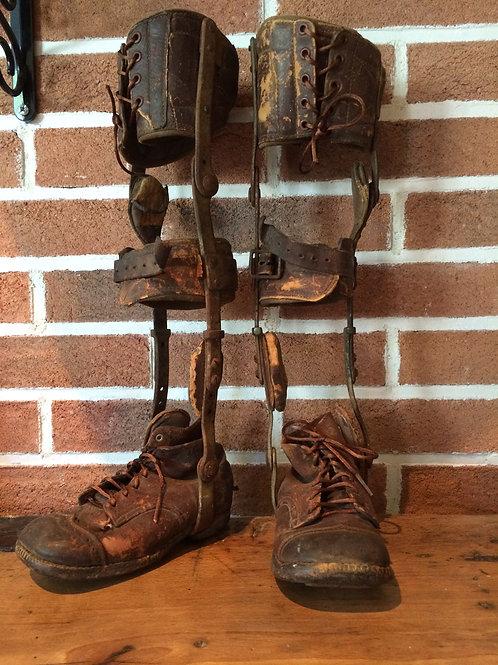 """Prothèse de redressement dit """"chaussures à brettelles"""""""