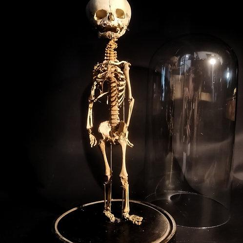 Préparation osteologique Tramond, XIXème
