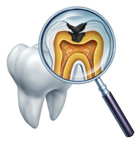Columbia Dentist Provides Safe Dental Extraction