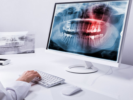 Can a Dental Filling Cure Your Toothache?