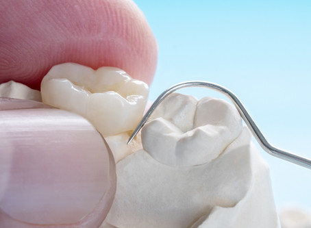 Good Things to Know When You Get a Dental Crown