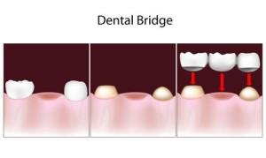 Columbia Dentist Restores Smiles with Dental Bridges