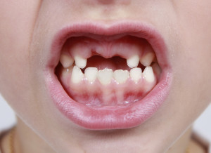 child with missing baby teeth