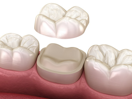 Tooth Concerns that a Dental Crown Might Be Best For