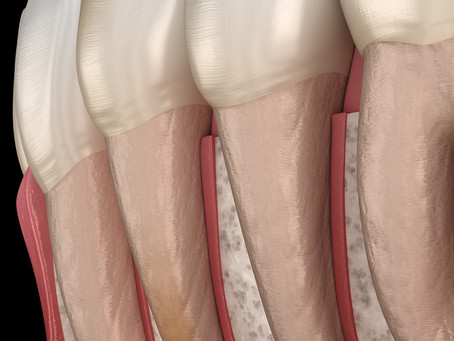 3 Things You Should Know About Root Canals