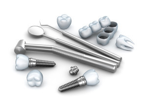 Columbia, TN Dentist Answers Dental Implant Aftercare Questions