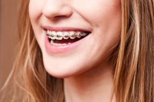 Columbia Dentist Answers FAQs About Caring for Orthodontics