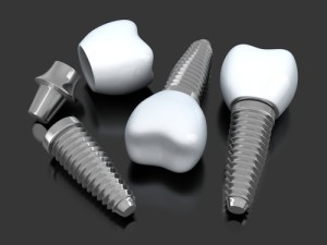 Columbia Dentist Answers FAQs About Dental Implants
