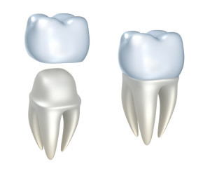 Columbia, TN Dentist Explains Temporary Crown Care