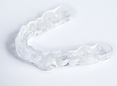 A Few Good Things About Modern Clear Aligners