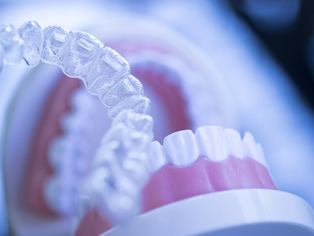 A Few Benefits to Wearing Clear Aligners