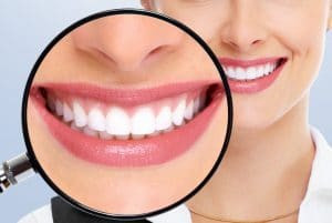 Steps to Brightening Your Smile with Teeth-Whitening