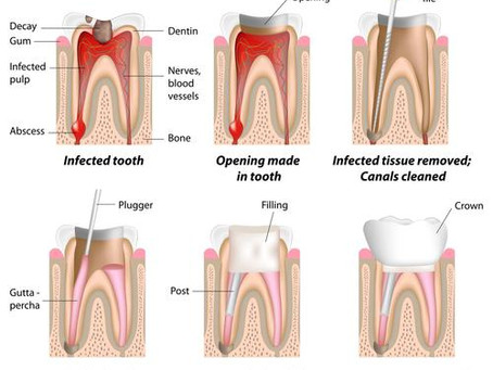 Columbia Dentist: Learn About Root Canal Therapy with Today's Quiz