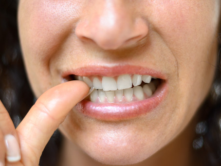 3 Nibbling Problems Affecting Your Smile
