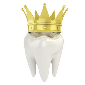 Columbia, TN Dentist Explores the Necessity of a Dental Crown
