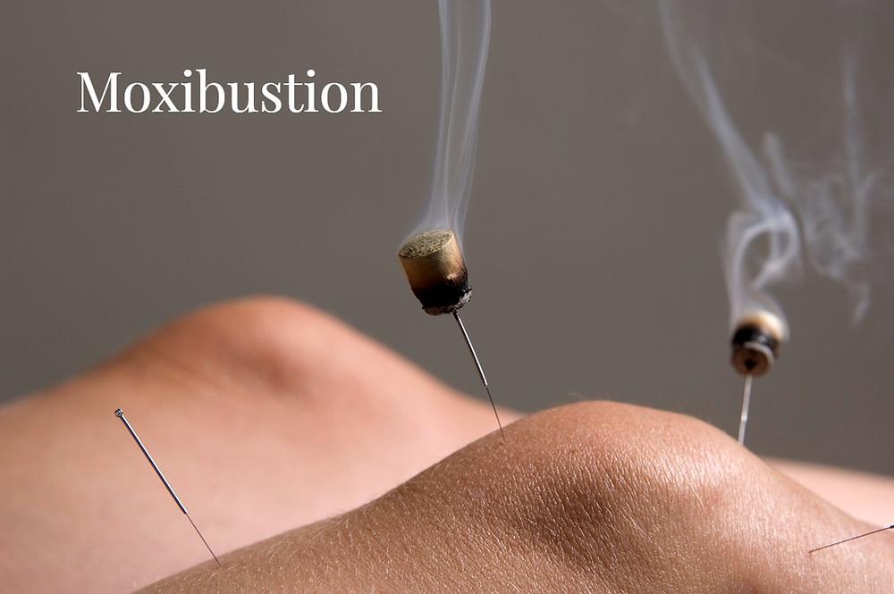 moxibustion Macpherson TCM