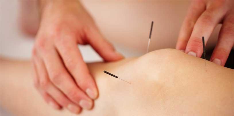 acupuncture Macpherson TCM