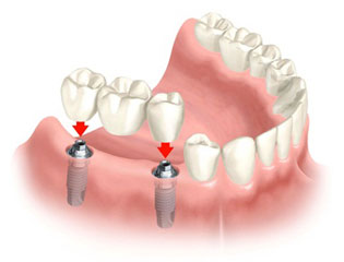 Implant/Bridge