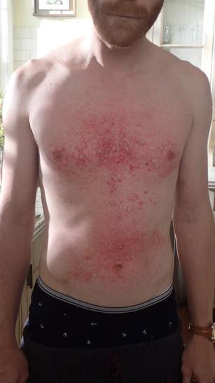SFX rash \ allergic reaction